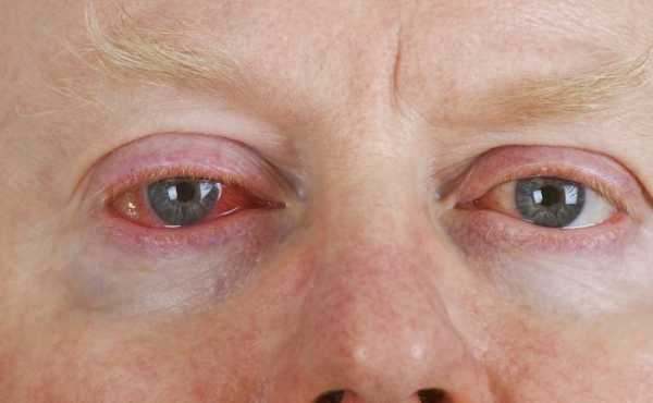 Отек глаз при аллергии - что делать и как быстро снять?