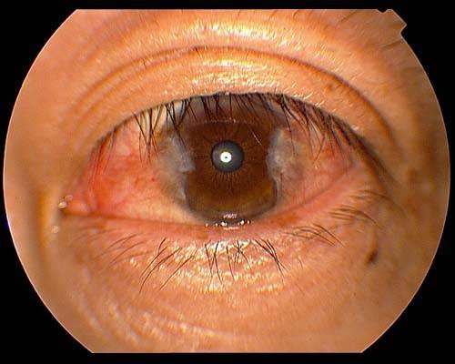 Птеригиум: симптомы и лечение