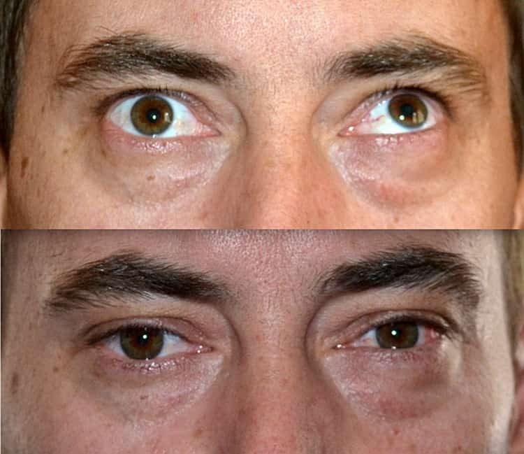 Лучшие упражнения для глаз при косоглазии. сайт «московская офтальмология»