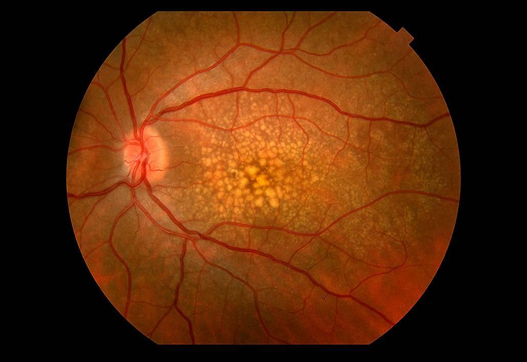 Ретинит глаза (воспаление сетчатки) — симптомы и лечения (фото)