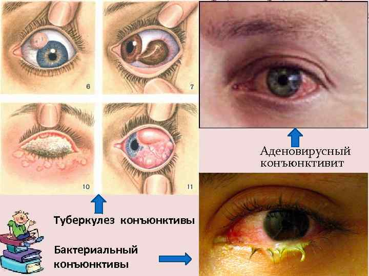 Опасность аденовирусного конъюнктивита: лечение, профилактика и симптомы