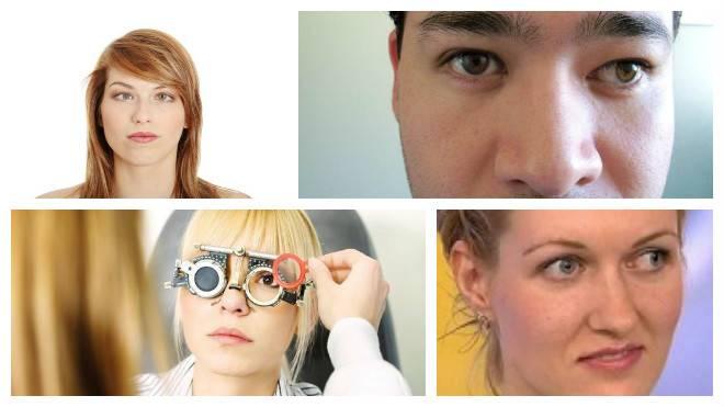 Варианты определения косоглазия в домашних условиях | про болезни глаз