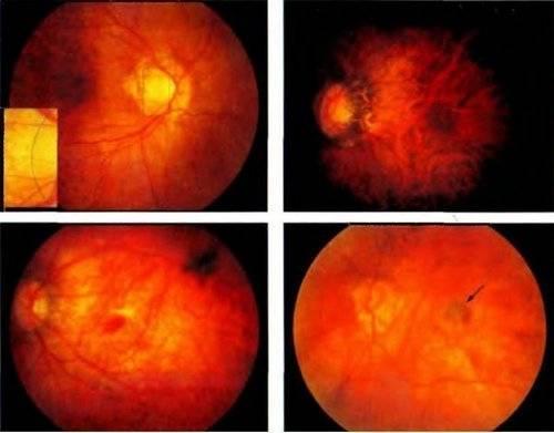 Миопическая стафилома. миопический конус и стафилома — причины и лечение. состояние зрительного нерва и ретинальных сосудов