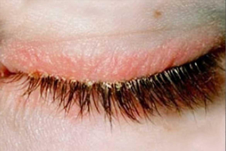 Блефарит: симптомы и лечение в домашних условиях, массаж, лекарственные препараты