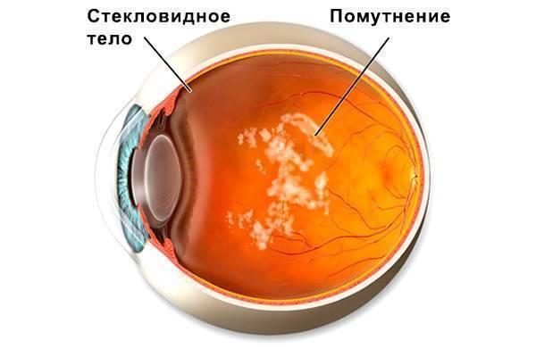 Витреолизис