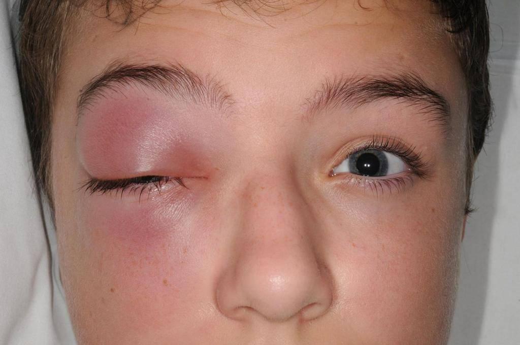 Как убрать мешки под глазами после слез (домашние рецепты)