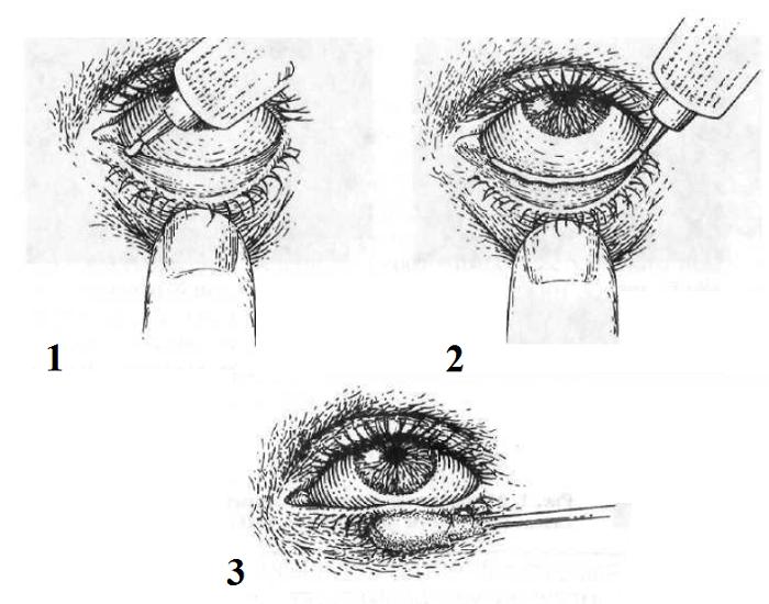 Обзор увлажняющих, промывающих и лечебных капель для глаз от известных брендов