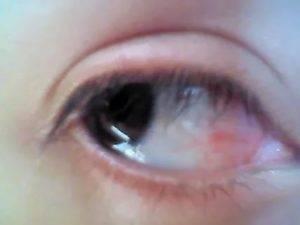 Глаз вытек и белый у человека - в уголках на белом появляются слизь и желтые выделения, вытекают глаза, как называется жидкость