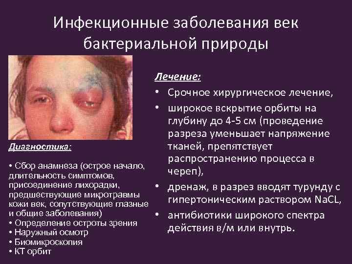 В целом и коротко про глазные инфекции