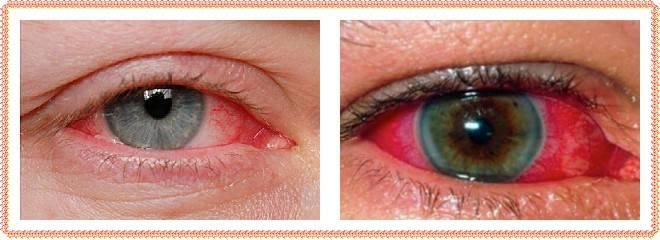 Кровоизлияние в глаз: лечение и причины