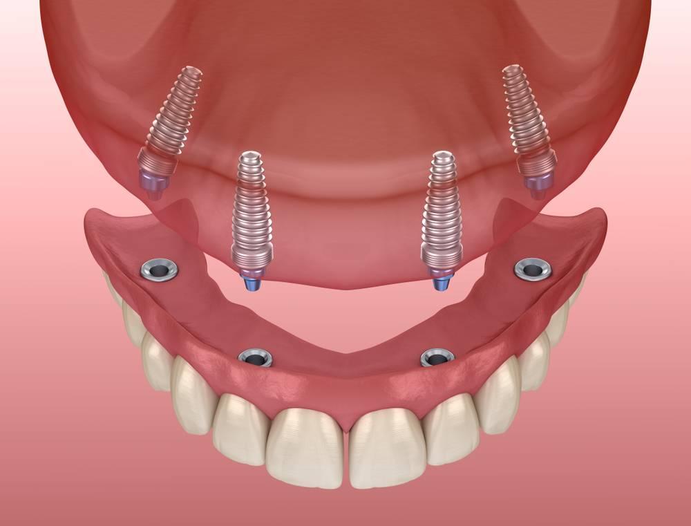 Способ имплантации линзы acrysof посредством инжекторной системы acrysert