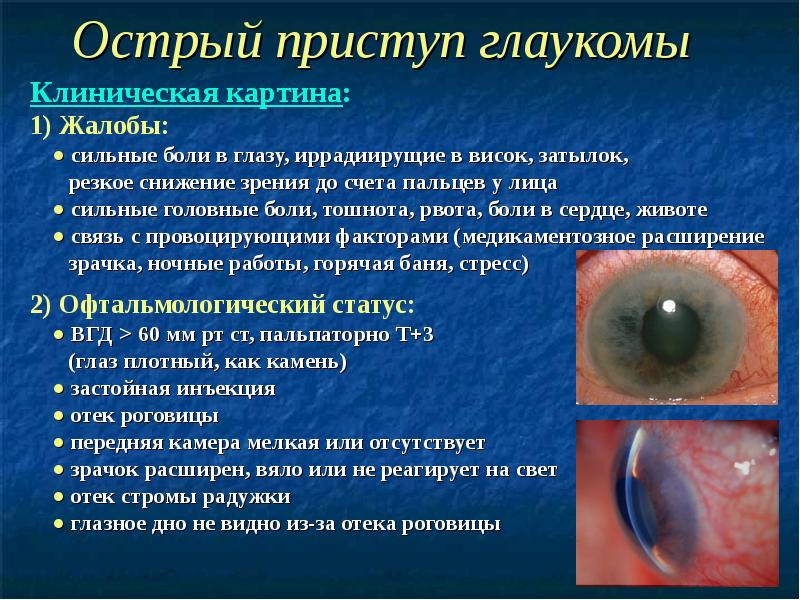 Симптоматика и лечение закрытоугольной глаукомы