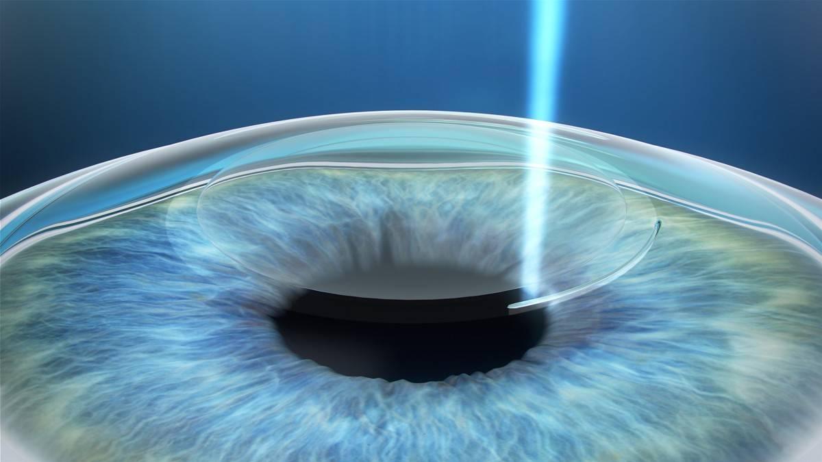 Осложнения и риски лазерной коррекции зрения смайл