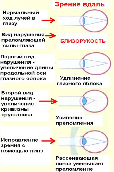 Острота зрения