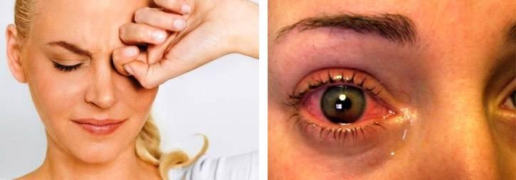 Можно ли вылечить глаукому народными средствами — отзывы