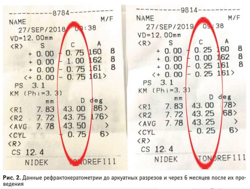 Авторефрактометрия, расшифровка показания авторефрактометра