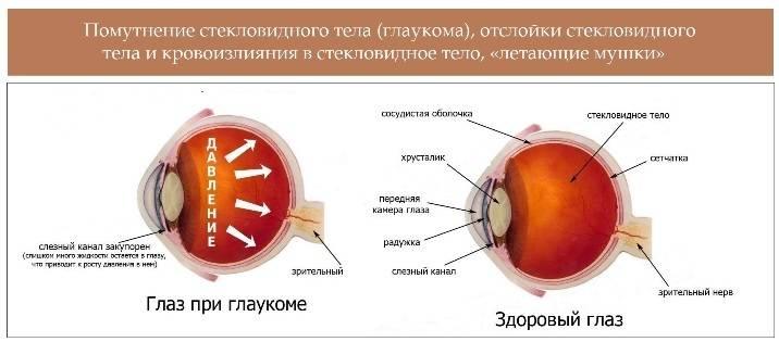 Можно ли работать за компьютером если есть глаукома