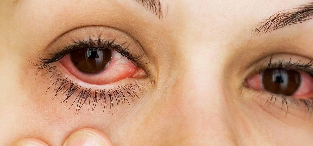 Лечение глаз народными средствами: рецепты для улучшения и востановления зрения