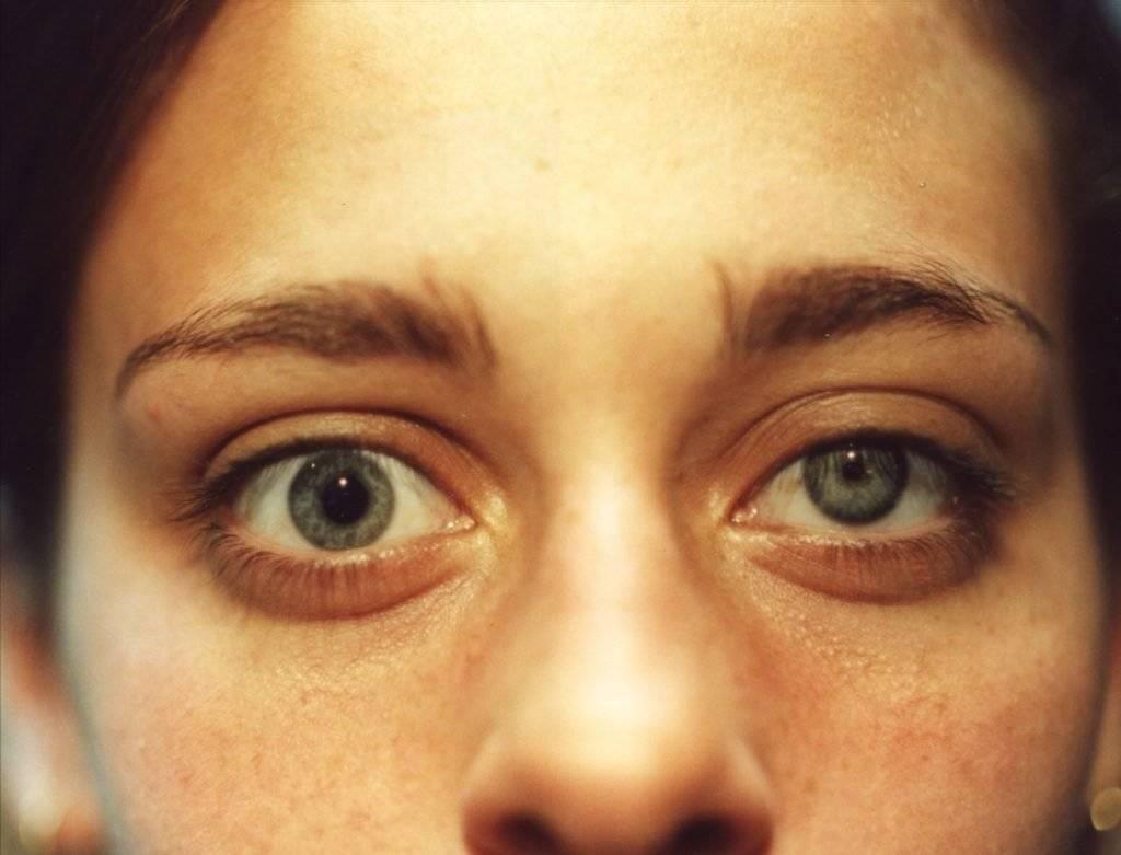 Синдром бернара-горнера: неврологические признаки и выбор верного лечения