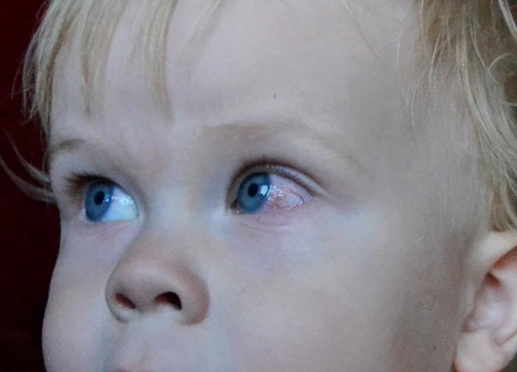 Слишком много слез – уже патология. почему слезятся глаза у детей, что делать с этим?