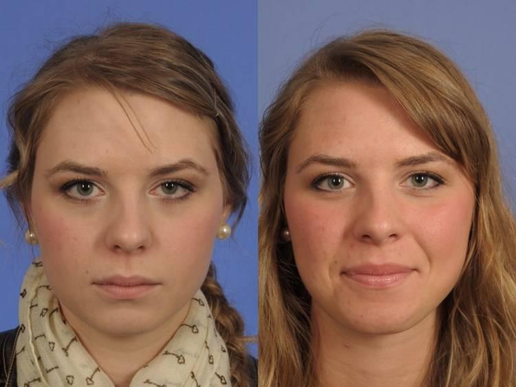 Асимметрия лица: как исправить смещение челюсти - исправление кривой при деформации в домашних условиях, когда одна сторона больше другой, исправить подбородок