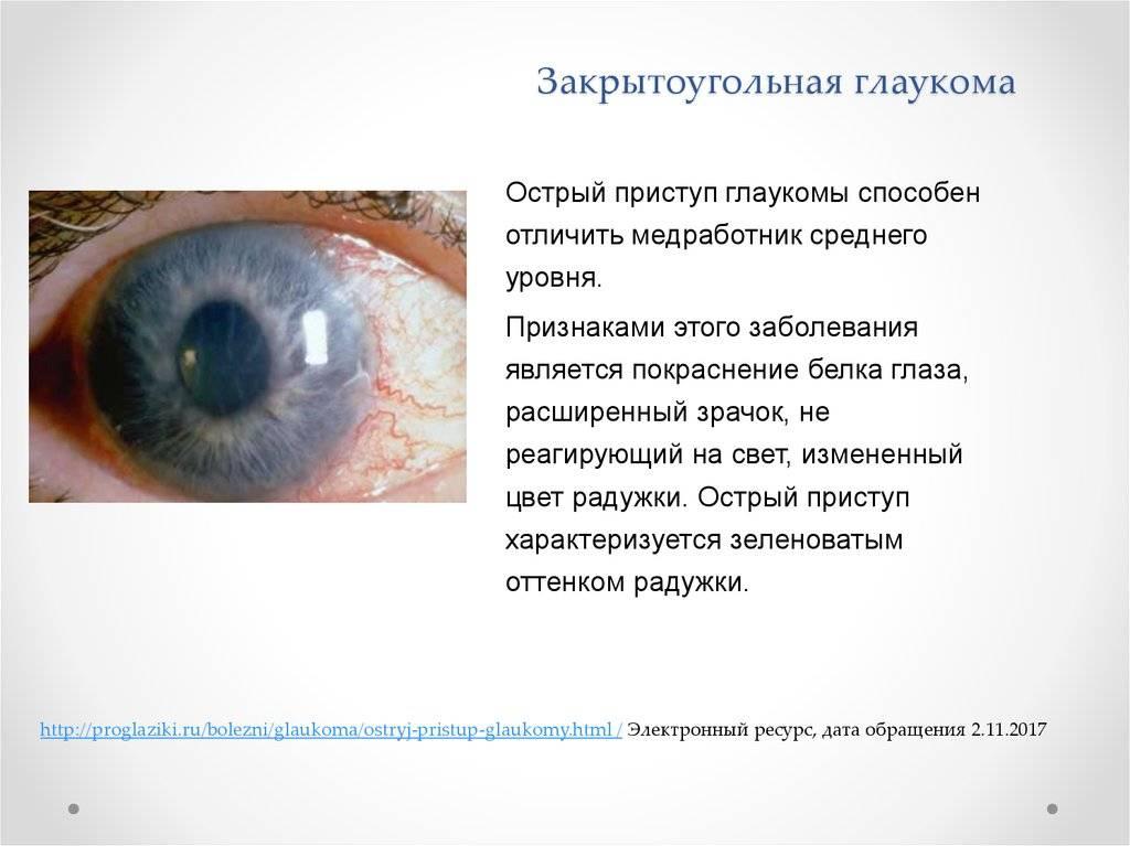 Закрытоугольная глаукома - что это такое, симптомы и лечение