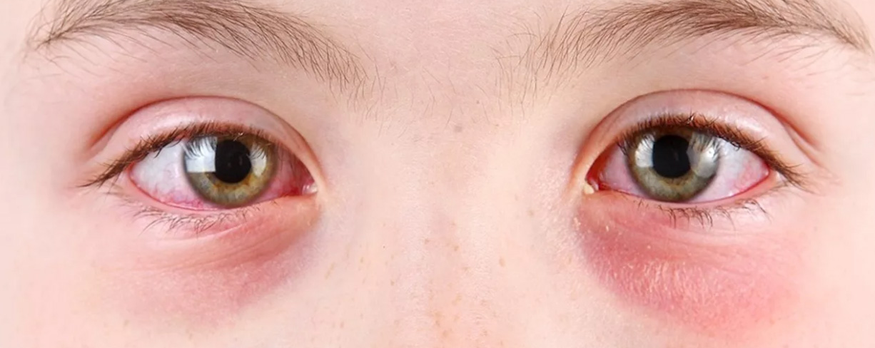 Покраснение вокруг глаз у ребенка и взрослого: причины и способы лечения в домашних условиях