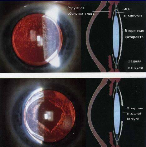 Вторичная катаракта: что это такое, причины, как выглядит, лечение