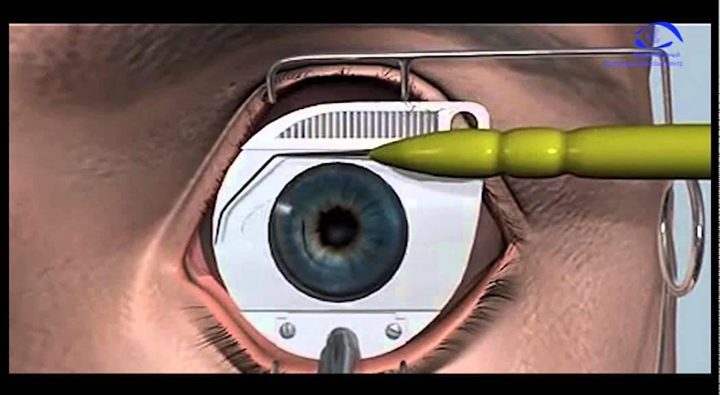 Информация о первых днях после удаления глаза и последующих действиях, о которых должен знать пациент.