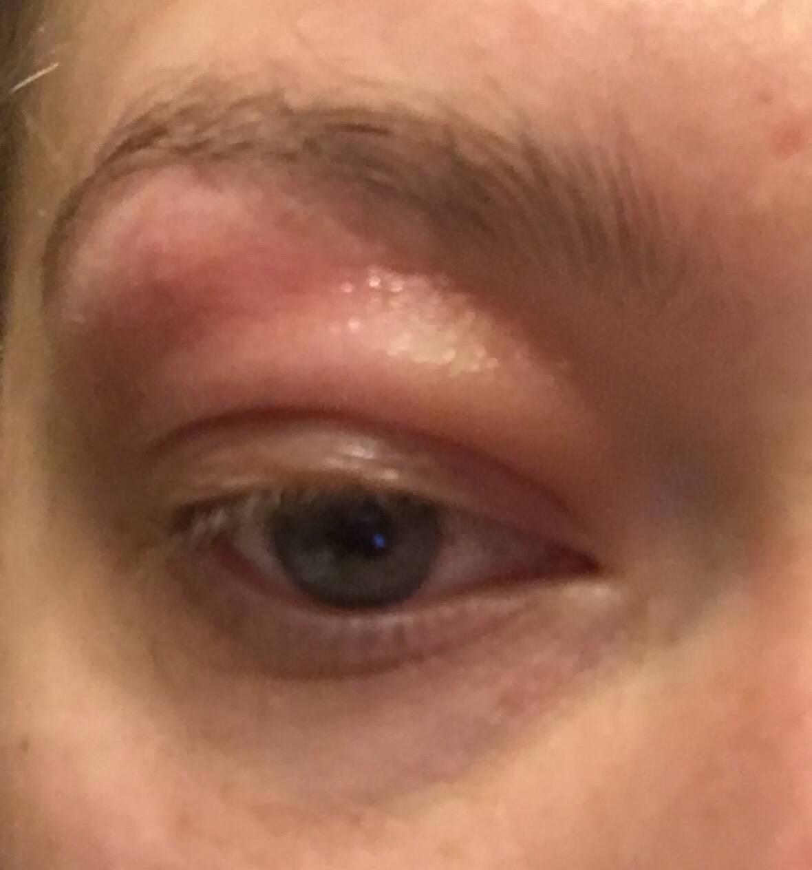 Почему появляется боль над правым или левым глазом в области лба?