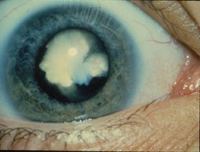 Заболевание катаракта глаза: причины и методы лечения