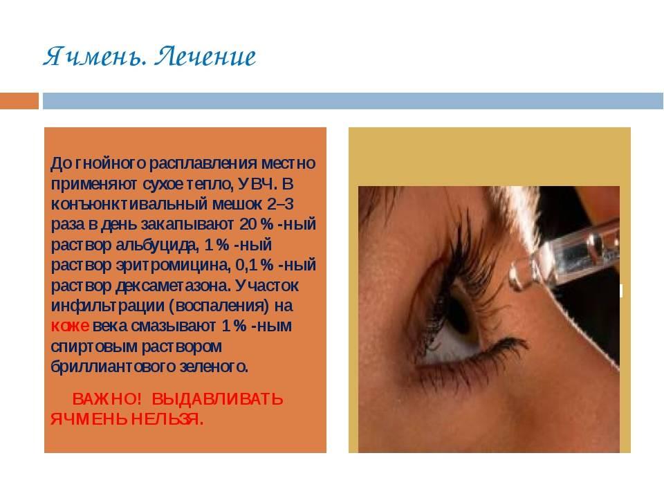 Можно ли греть ячмень на глазу, или стоит воздержаться от процедуры