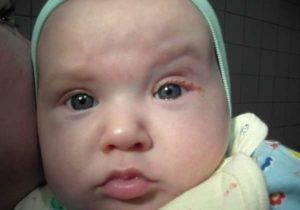 Красные веки у новорожденного: причины и диагностика, методы лечения
