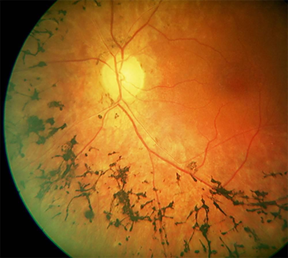 Ксантопсия - что это, причины и лечение - про глаза