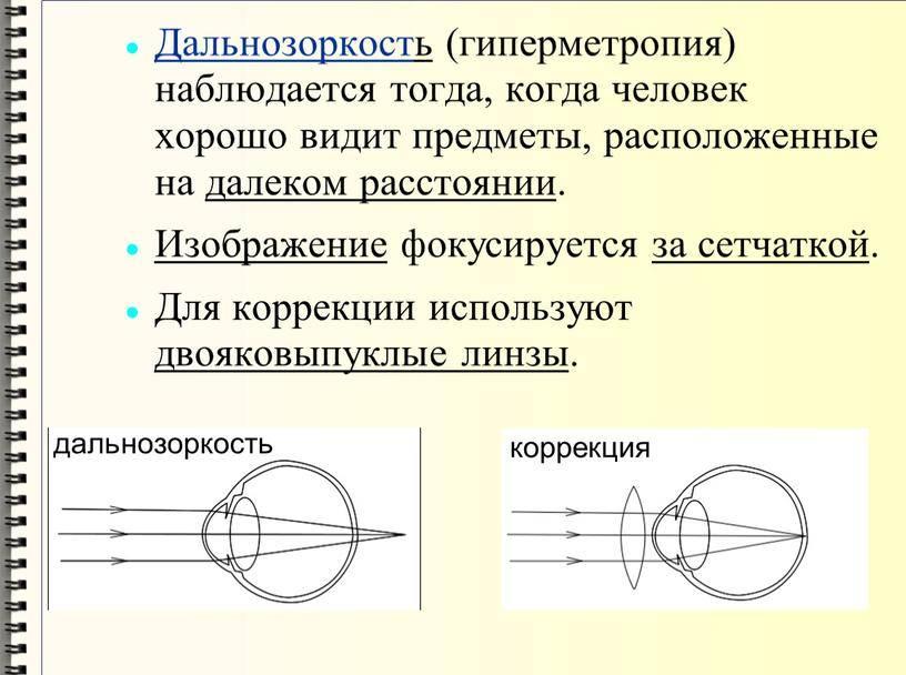 Профилактика дальнозоркости (гиперметропии)