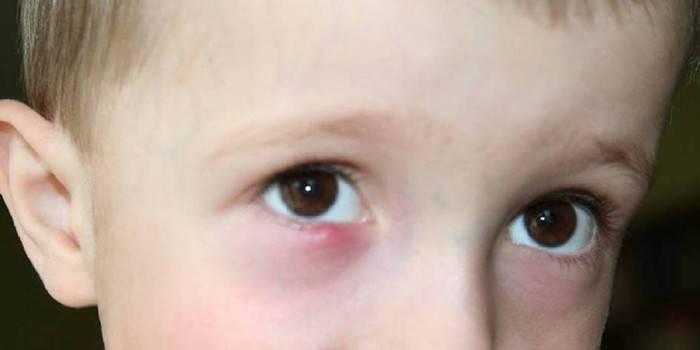 У ребенка слезится один глаз и гнойные выделения | ocularhelp