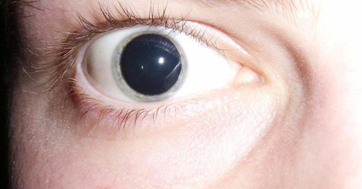 Причины появления анизокории у взрослых, способы лечения патологии разных зрачков