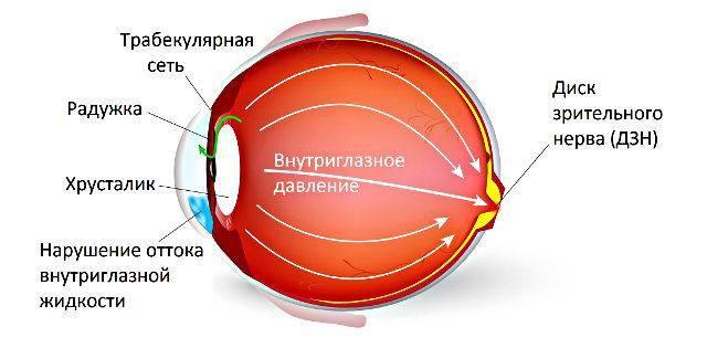 Что такое глазная гипертензия?