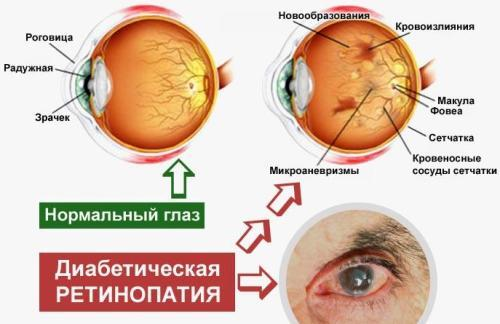 Почему возникает ангиопатия сетчатки глаза у детей?