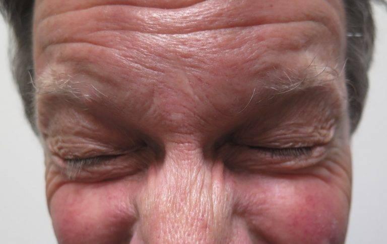 Симптомы и лечение блефароспазма
