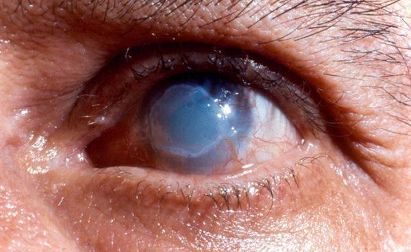 Эрозия роговицы глаза – причины, симптомы и лечение (фото)