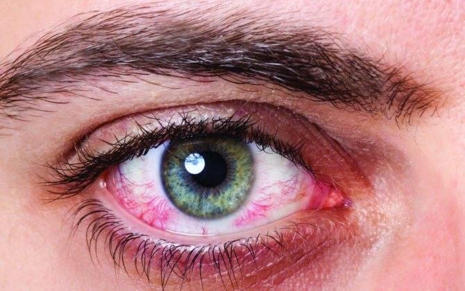 Как убрать покраснение глаз в домашних условиях