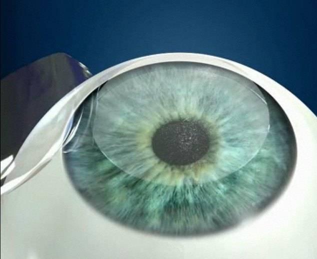 Вторичная катаракта: лечение лазером, кому можно чистить хрусталик, противопоказания для удаления