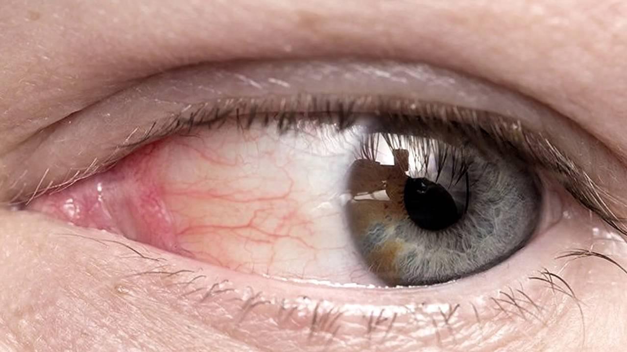 Почему образуется пленка на глазах