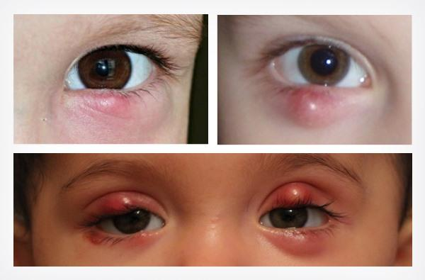 Халязион у детей: лечение и профилактика