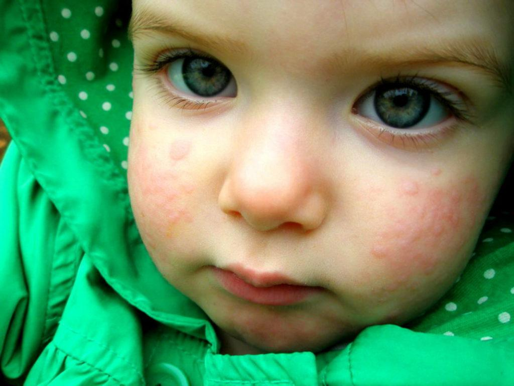Глазная мазь от аллергии на веках: причины появления и лечение