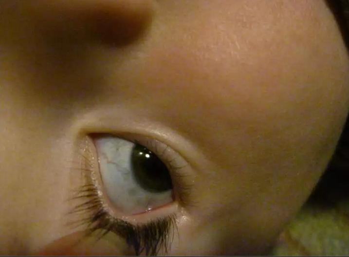 Голубые белки глаз - причины, что это означает