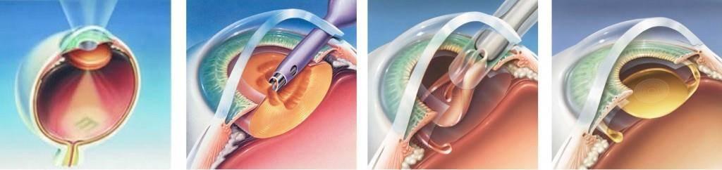 Замена хрусталика глаза: операция, цены, отзывы, при катаракте