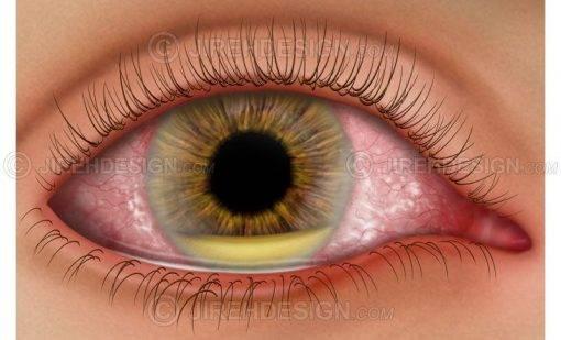 Послеоперационный эндофтальмит глаза