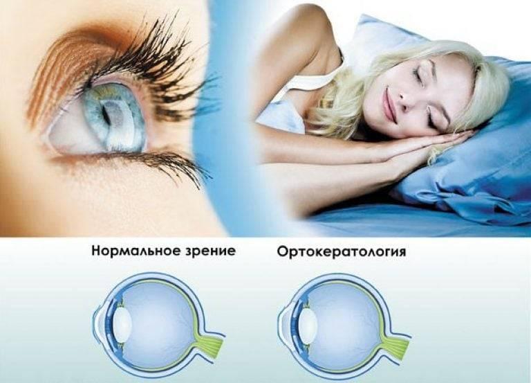 Мнения людей про ночные линзы для восстановления зрения: отзывы врачей и пользователей на основе реального опыта